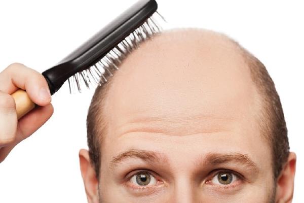 Saç dökülmelerinin farklı sebepleri olabilir