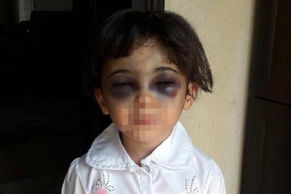 3 yaşındaki kızı bu hale getiren üvey anne tutuklandı