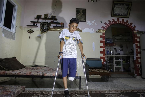 Gazzeli Nevfel: Bacağımı kaybedecek hangi suçu işledim?