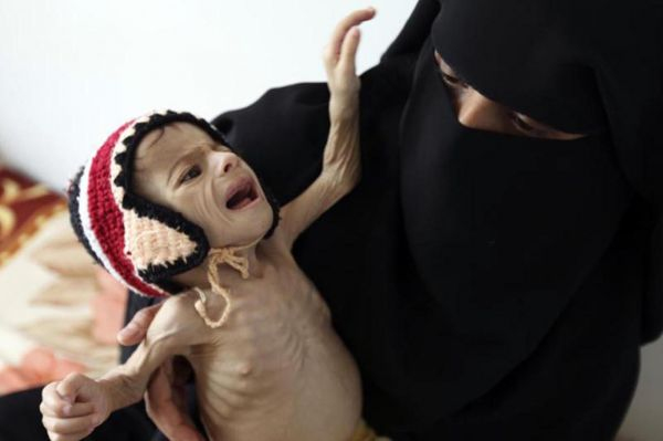 Yemen'deki 'insani facia' ile ilgili uyarı