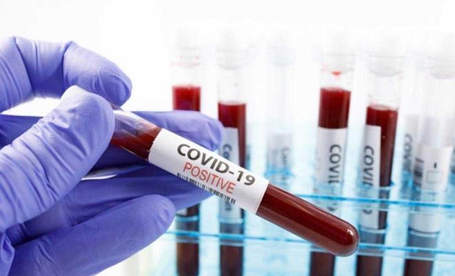 Elâzığ'da 12 yeni Coronavirus vakası tespit edildi