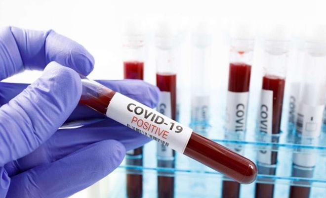 Güney Afrika Cumhuriyeti'nde Coronavirus vaka sayısı 655 bini geçti