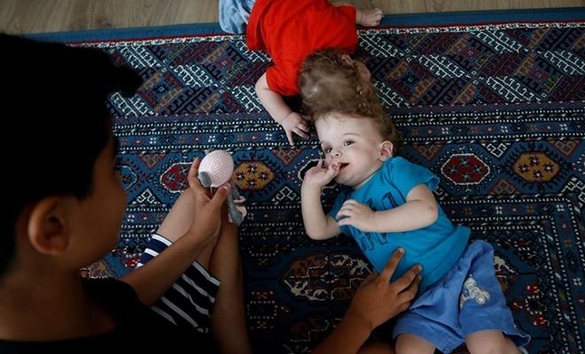 Kafadan yapışık siyam ikizleri bir yaşında