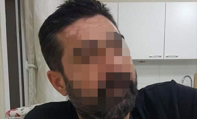 Adana'da Ölü sayısı 12'ye yükseldi