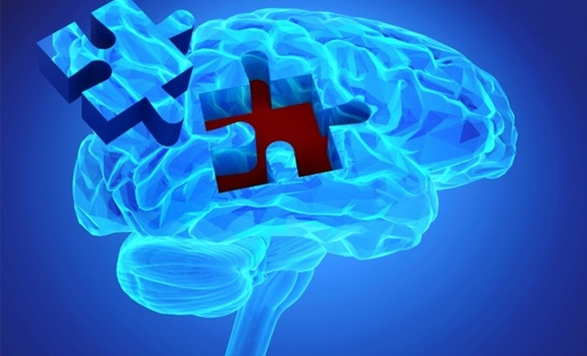 Alzheimer teşhisinde Türkiye imzası