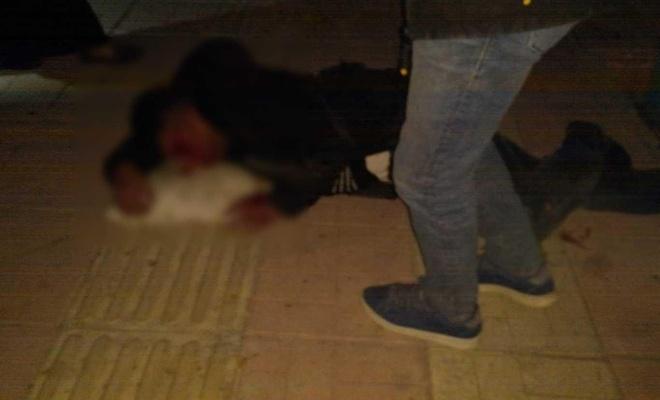 Otomobil ile motosiklet çarpıştı: Bir ağır yaralı