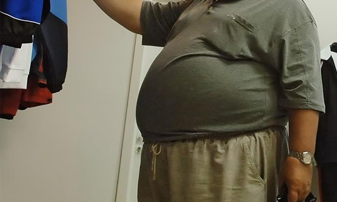 `Dünya nüfusunun üçte biri obez`