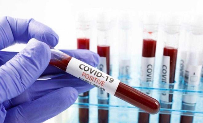 الوكالة الوطنية للصحة الفرنسية: حالات الفيروس كرونا المبلغ عنها أقل بكثير من العدد الفعلي