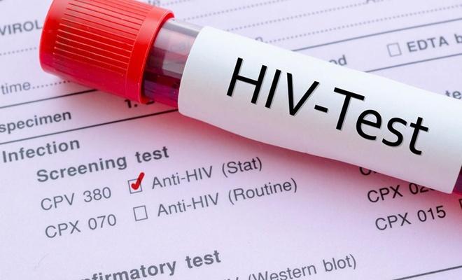 Di sala 2018an de 770  hezar kes ji ber AIDSê mirin