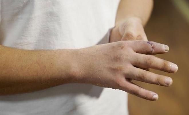 Malta'da kopan parmağını Türkiye'de diktirdi