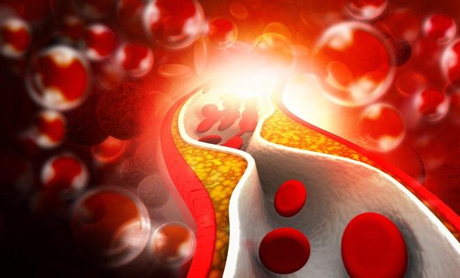 Kolesterol yüksekliği neden olur?.. İyi-kötü kolesterol nedir?