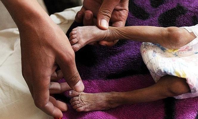 `Yemen`de yaklaşık 85 bin çocuk yetersiz beslenmeden ölmüş olabil