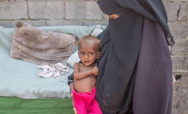 Yemen dünyanın en kötü kıtlık tehlikesiyle karşı karşıya