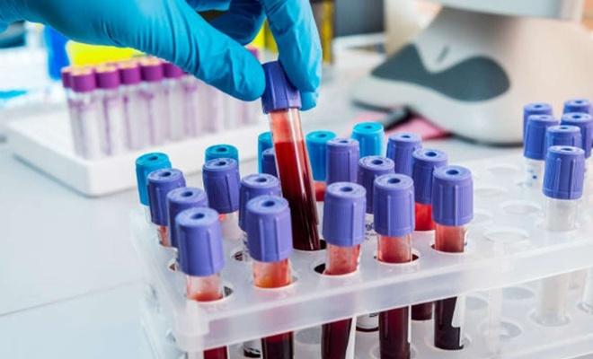 Breziya'da bir günde 910 kişi Coronavirus nedeniyle hayatını kaybetti